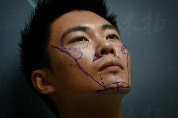 Esthétique En Chine, les hommes passent aussi sous le bistouri)