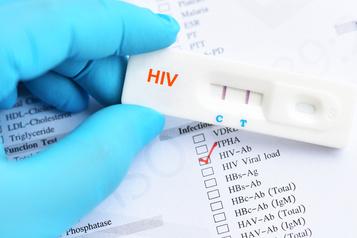 Une nouvelle souche rare du VIH enregistrée