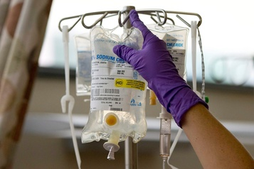 Cancer du poumon et du côlon: taux de survie élevés au Canada