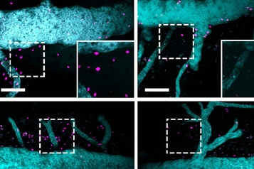 Découverte montréalaise sur la sclérose en plaques