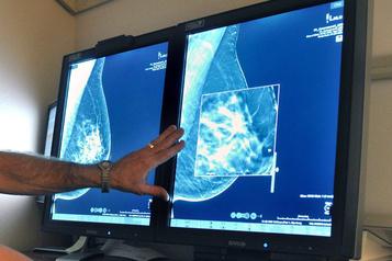 Seins denses: un organisme déplore que Québec n'informe pas directement les femmes