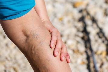 VENIXXA Maladie veineuse chronique : Retrouver des jambes en santé)