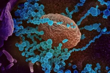 COVID-19: la génétique à la rescousse des chercheurs)