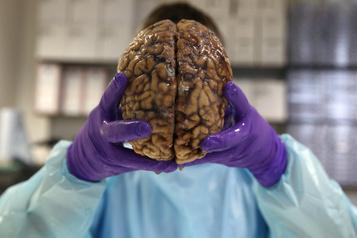 Un cerveau humain saisi dans un camion postal à la frontière