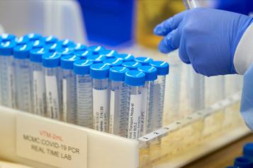 Des chercheurs auraient trouvé le «talon d'Achille» du coronavirus)