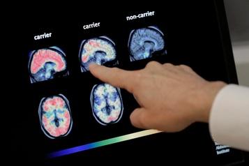 Le lithium pourrait combattre la maladie d'Alzheimer