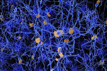 Maladie d'Alzheimer Le mystère des plaques amyloïdes)
