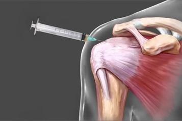 Le traitement des douleurs articulaires pourrait causer plus de tort que de bien