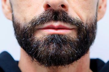 Greffe de barbe: «C'est encore surréaliste»