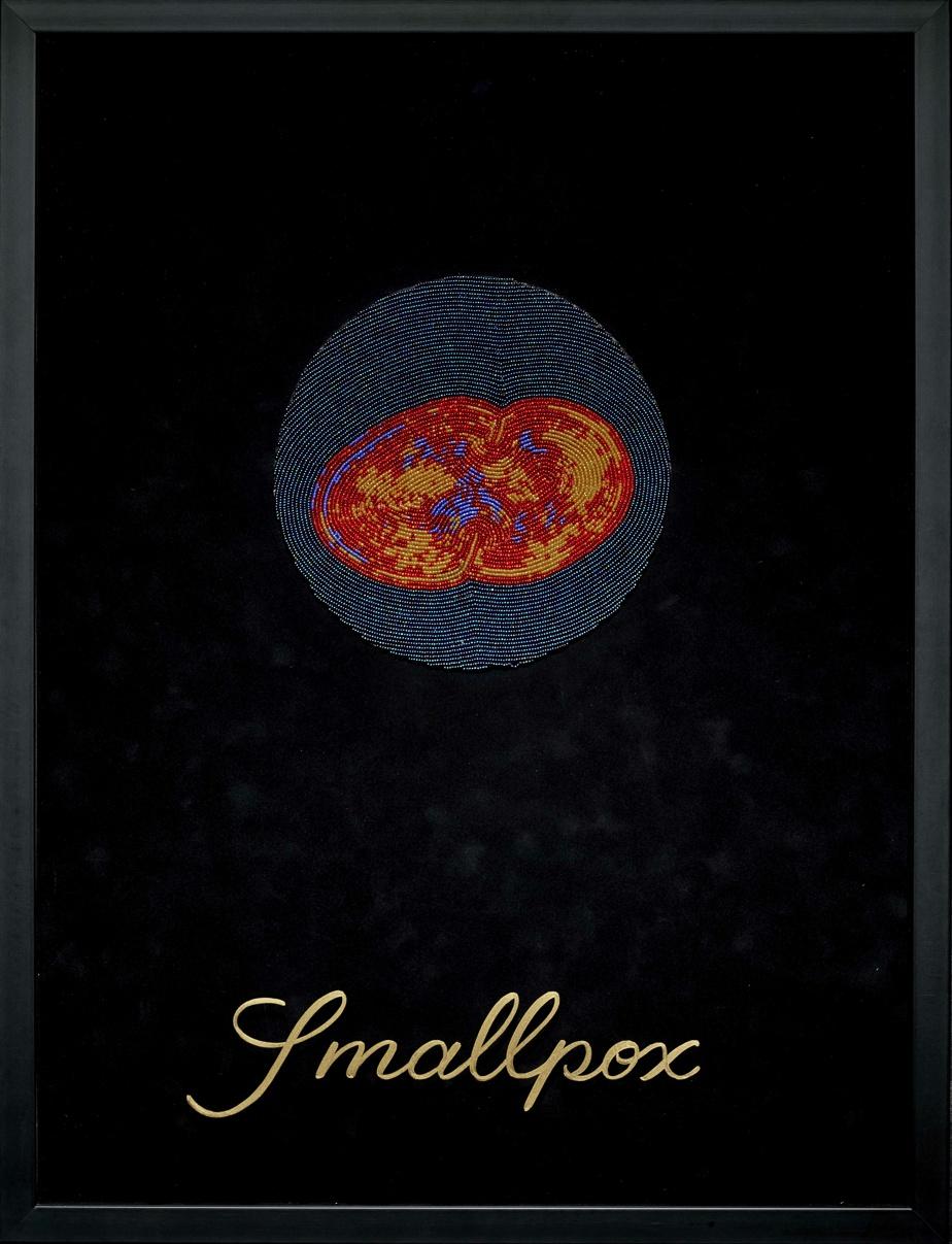 Smallpox [La variole], 2011, Ruth Cuthand, perles de verre, carton sans acide avec flocage de rayonne, fil de nylon et de polyester-coton, peinture à l'huile, Plexiglas et cadre en bois, 64cm x 49 x 3cm. MBAC, Ottawa.