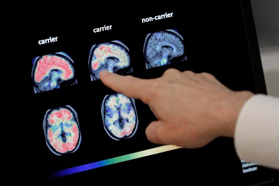 SANTE : Un test sanguin pour détecter Alzheimer 20 ans avant son apparition
