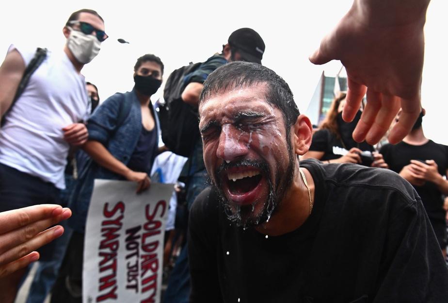 Du lait a été aspergé dans le visage d'un manifestant victime des gaz lacrymogènes.