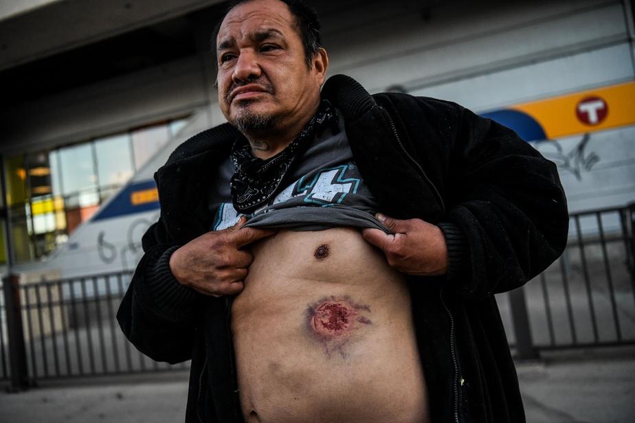 Boaz Brownader montre une marque laissée par des éclats de gaz lacrymogènes lors d'une manifestation à Minneapolis.